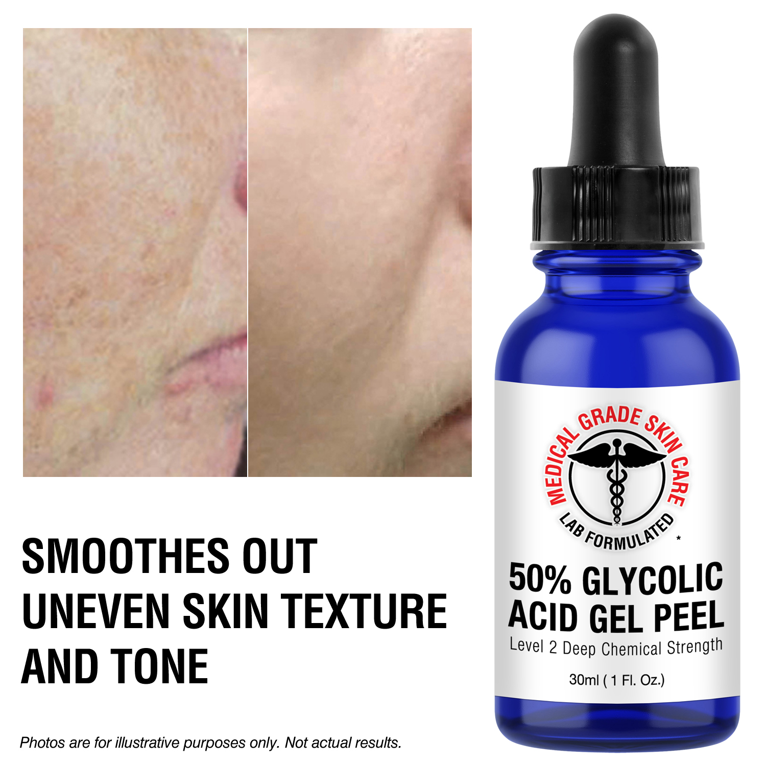 Glycolic facial gel