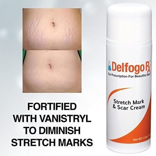 stretch mark and scar cream