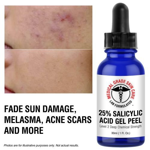 Salicylic acid for melasma
