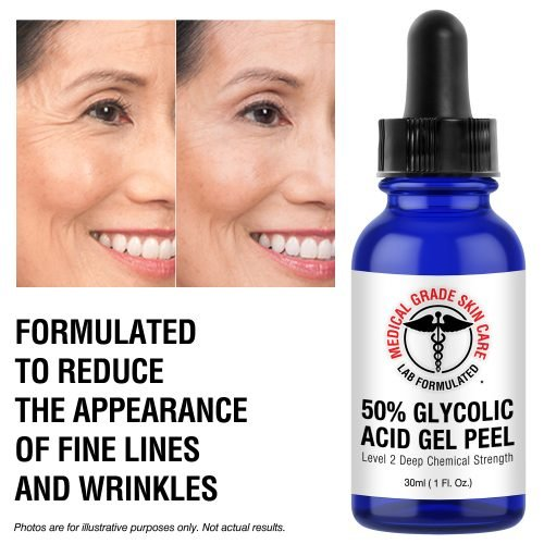 glycolic acid for wrinkles