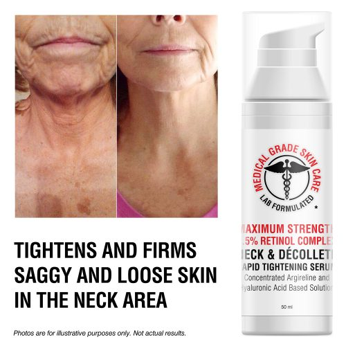 Fix a sagging neck