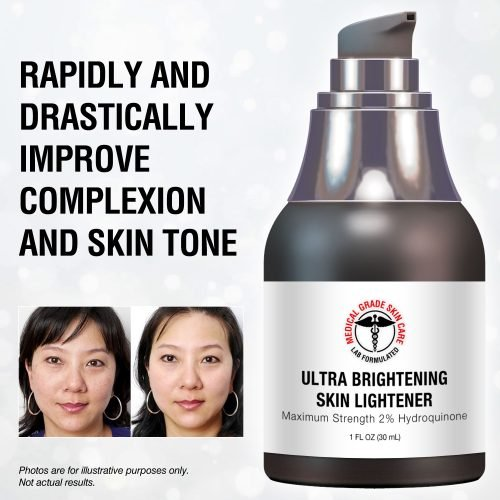 skin cream for lightening