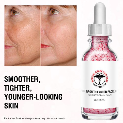facelift serum