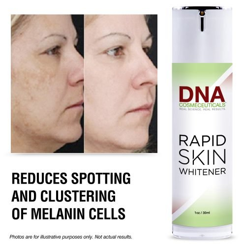 reduce spotting on your skin