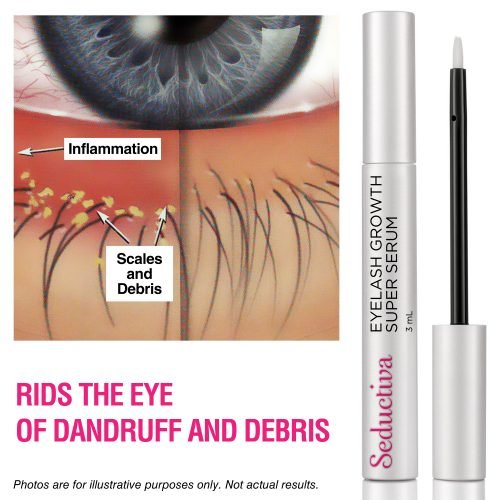 Get rid of eye debris