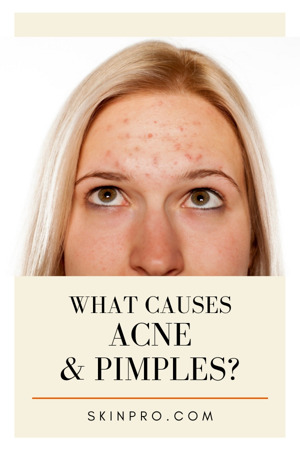 causes of acne and pimples