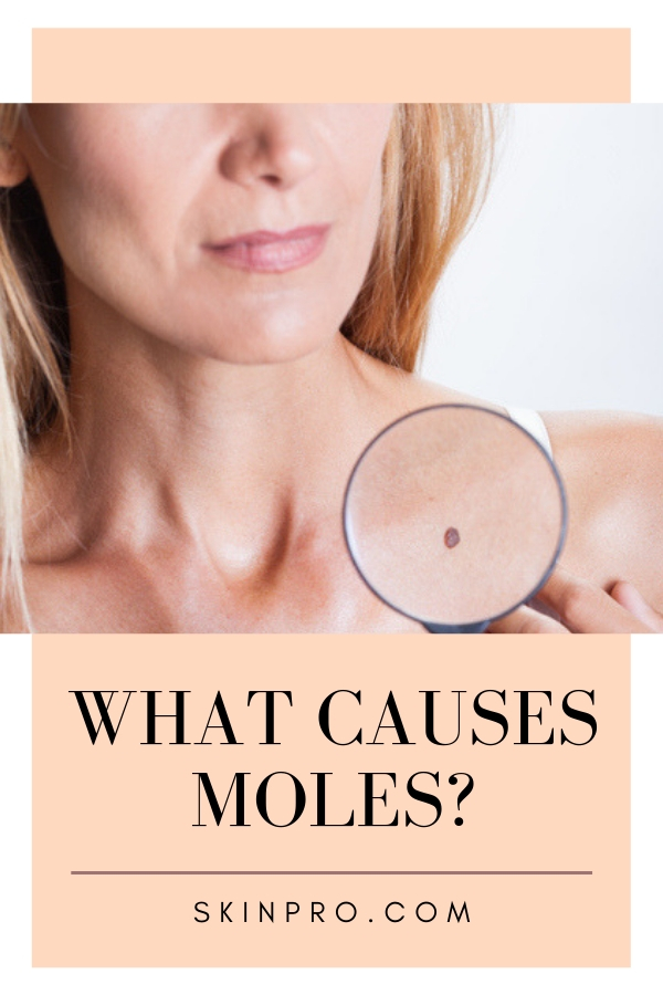 causes of moles on skin