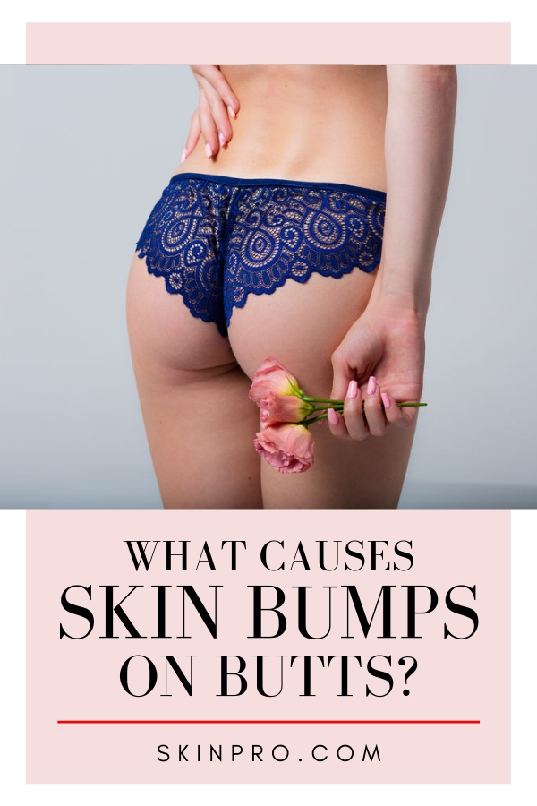 Skin bumps on butts are butt acne, learn causes and treatments for smoother skin